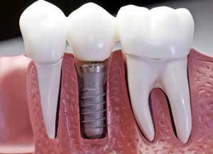 نرم-افزار-دندانپزشکی